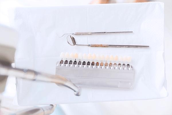 Blanchiment dentaire au Cabinet dentaire et d'orthodontie du lagon