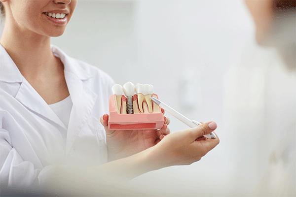 Implant multiple au Cabinet dentaire du lagon