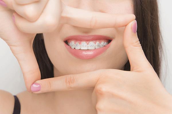 Orthodontie chez l'adulte au Cabinet dentaire et d'orthodontie du lagon